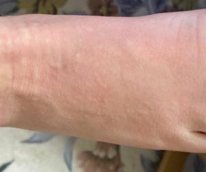 温熱蕁麻疹の症状と治療法は?湿疹の画像あり